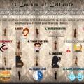14 Las causas de la celulitis