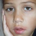 26 Fácil Remedios caseros para el herpes labial