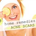 29 Remedios caseros para el retiro de la cicatriz