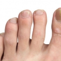 35 remedios caseros para el tratamiento de hongos en las uñas
