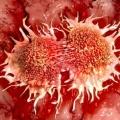 """Curar los cánceres altamente evolucionados de hoy """"podría ser imposible"""""""