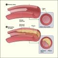 La deficiencia de vitamina A principios d vinculado a daño arterial en la edad adulta