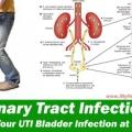 Los remedios caseros que son muy eficaces en la infección del tracto urinario