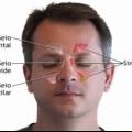 Cómo cuidar de un dolor de cabeza sinusal (rápido y naturalmente)?