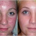 Cómo desaparecer las cicatrices del acné? (Incluyendo los remedios caseros)