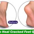Cómo curar los pies agrietados de forma rápida