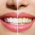 Cómo usar peróxido de hidrógeno para blanquear los dientes?