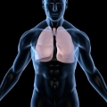 Las tasas de cáncer de pulmón en los EE.UU. están disminuyendo: factores de raza, edad y género están afectando