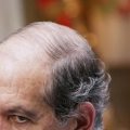 La mayoría de los hombres sufren de caída del cabello: remedios naturales que realmente funcionan