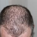 Ingredientes potentes pueden luchar la caída del cabello