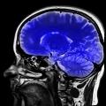 Proteína que se encuentra en el veneno de escorpión hace tumores cerebrales más rápido y más fácil de encontrar