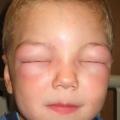 Las escuelas carecen de planes de gestión de la salud para los niños con asma y alergias alimentarias