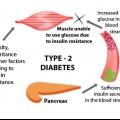 Los efectos a corto plazo de la diabetes tipo 2