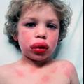 Un estudio halla que los bebés con la mutación del gen de la piel expuesta a las proteínas de maní en los hogares más propensos a desarrollar alergias a los cacahuetes