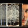 Estudio revela que 1 de cada 5 personas con epilepsia tiene síntomas de TDAH