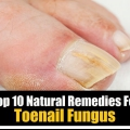 Top 10 de los remedios naturales para hongos en las uñas