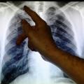 El clima cálido aumenta los factores de riesgo para las infecciones pulmonares crónicas: estudio