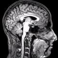 Mujeres disminuyen los hombres más rápidos que una vez que aparecen los primeros signos de demencia