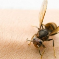 10 efectivos remedios caseros para las picaduras de insecto