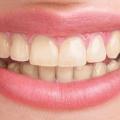 10 Eficaces Remedios caseros para dientes amarillos