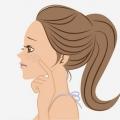 12 Remedios caseros para las manchas oscuras en la cara