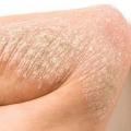 5 tipos de psoriasis y sus tratamientos