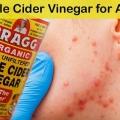 El vinagre de manzana para el acné