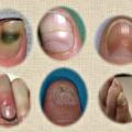 Problemas en las uñas Generales y remedios