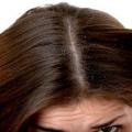 Los remedios herbarios para la caspa del cuero cabelludo que pica