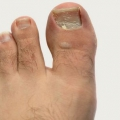 Top 10 Remedios caseros para uñas encarnadas