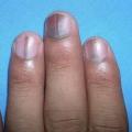 ¿Qué son los efectos de los nutrientes Deficiencias en las uñas y cómo corregirlos?