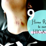 9 eficaces remedios caseros para curar Hickeys