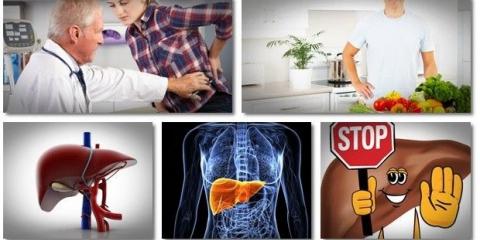 10 remedios naturales para las enfermedades hepáticas 3