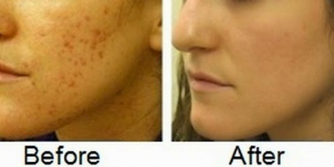 11 mejores remedios para eliminar las cicatrices del acné
