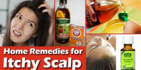 14 remedios caseros rápidos para cuero cabelludo que pica