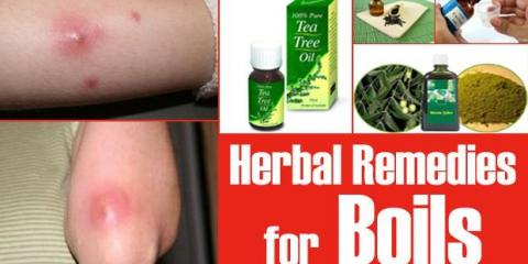 15 Los remedios herbarios para los forúnculos