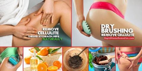 ¿Cómo deshacerse de la celulitis