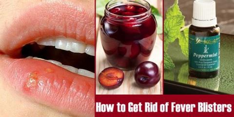 ¿Cómo deshacerse de herpes labial