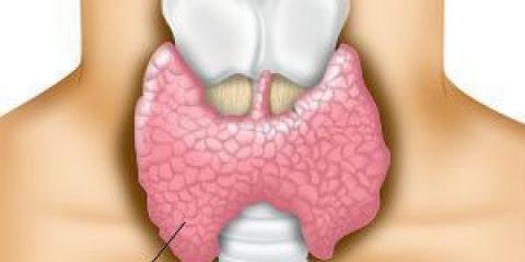 Cómo tratar la hipoglucemia y la tiroides hiper con remedios naturales