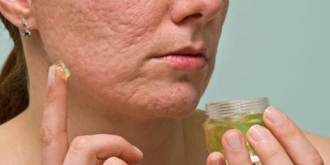 10 maneras naturales súper inteligentes para eliminar las cicatrices del acné