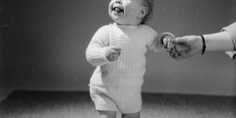 10-Semana de edad bebé se somete a cirugía para arreglar el cráneo deforme