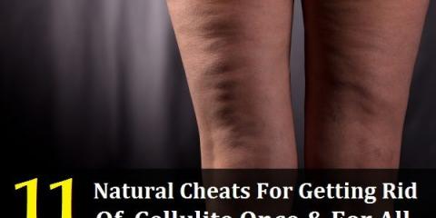 11 trucos naturales para deshacerse de la celulitis una vez y para todos