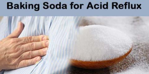 El bicarbonato de sodio para el tratamiento de reflujo ácido natural