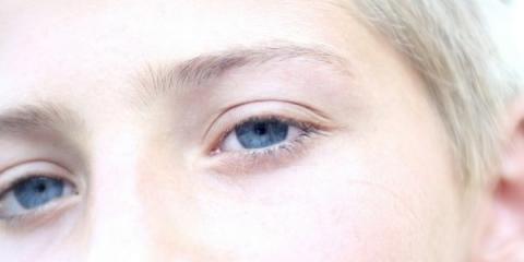 Consejos de belleza: maneras de prevenir las ojeras bajo los ojos
