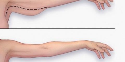 Los mejores ejercicios para perder grasa del brazo en casa