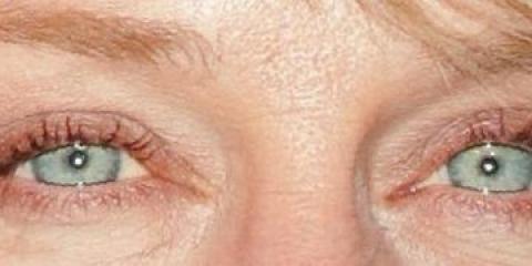 En hechos sobre el ácido hialurónico que se puede luchar contra el envejecimiento de la piel