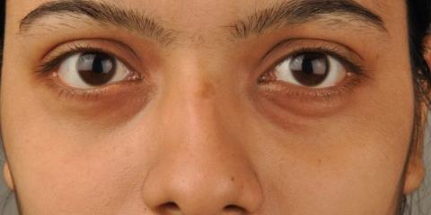 Hay varios factores que pueden causar las ojeras debajo de los ojos