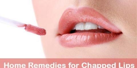 10 remedios caseros de bricolaje para los labios agrietados