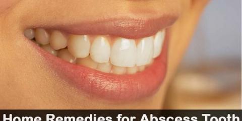 19 remedios caseros de bricolaje para diente absceso
