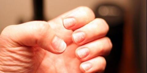 Remedios caseros para las uñas quebradizas / fácilmente rotos
